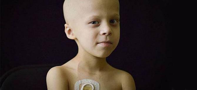 Αποτέλεσμα εικόνας για καρκίνος παιδί Χριστούγεννα