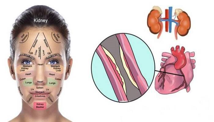 Τα σημάδια που έχετε στο πρόσωπό σας αποκαλύπτουν πολλά για την υγεία σας. Μην τα αγνοείτε!