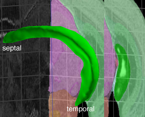 Dorsoventral vs. Septotemporal hippocampus (3/6)