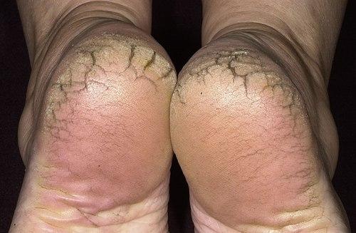 """best-cracked-heel-treatment"""