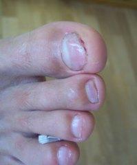 Schuhe Desinfizieren Nagelpilz Kosten