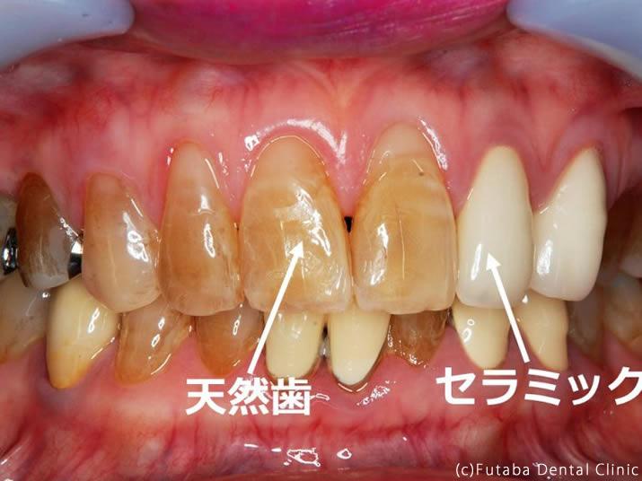 whitning pre 天然歯
