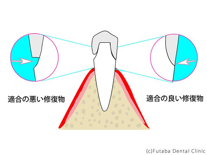 歯型の取り方による違い