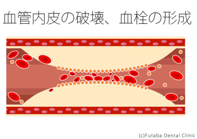 血管内皮の破壊、血栓の形成