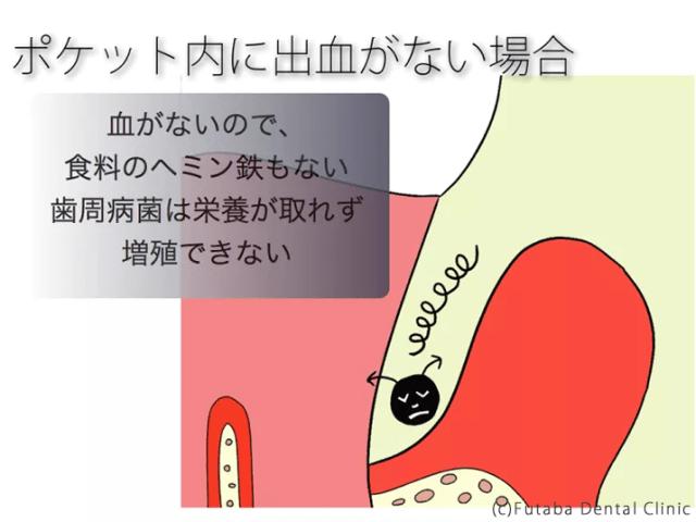 歯周ポケット ヘミン鉄.001