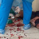 Șase medici din județul Constanța au intrat în izolare, după ce un localnic suspect de COVID-19 a intrat plin de sânge în spital și i-a scuipat