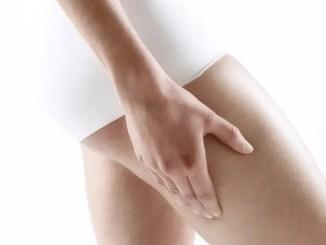 estrias « Microdermoabrasión para tratamiento de estrías