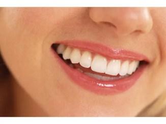 Cinco trucos caseros para blanquear tus dientes « Cinco trucos caseros para blanquear tus dientes