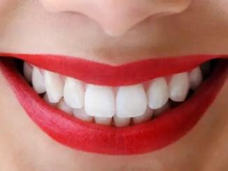 dientesBlancos « Luce siempre una sonrisa híper blanca atendiendo estos consejos