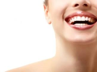 Blanqueamiento dental « ¿El blanqueamiento dental es un tratamiento estético o una simple moda?