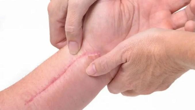 La cicatrización queloide