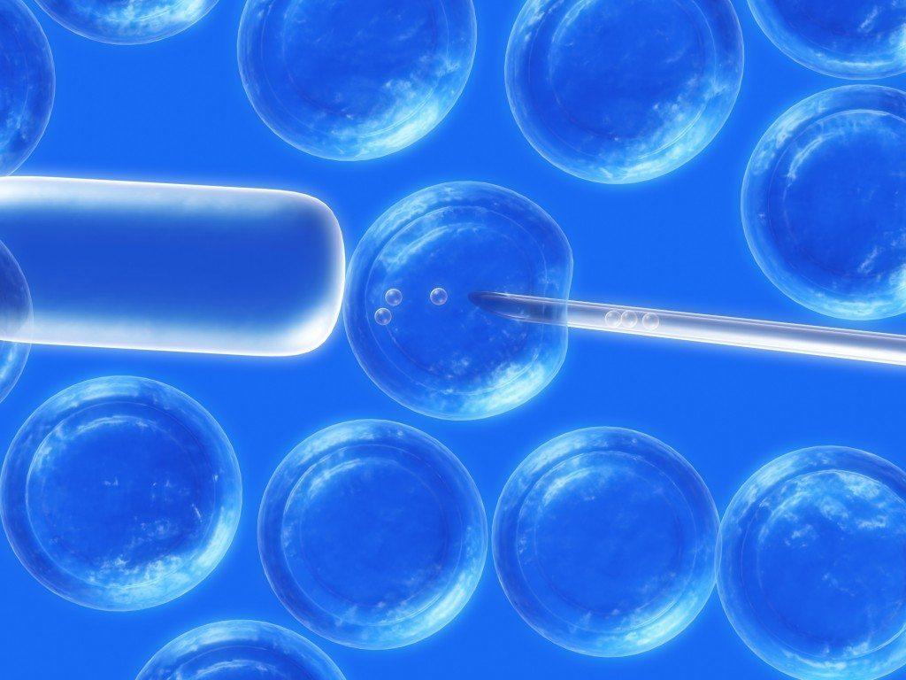 Prelevare celule stem