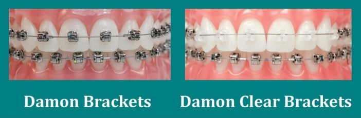 Tipuri aparate dentare