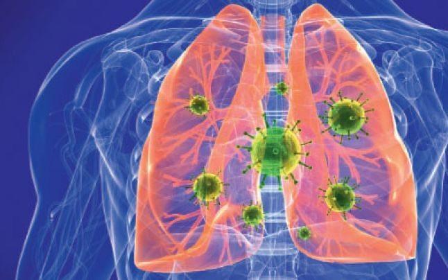 Pneumonie copii 4 ani