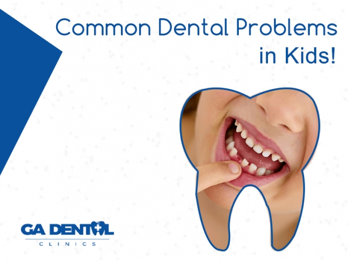 Common Dental Problems In Children