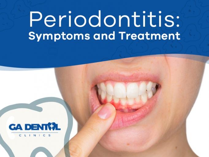Periodontal Disease Symptoms and Treatment