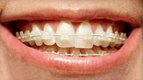 Ceramic Dental Braces