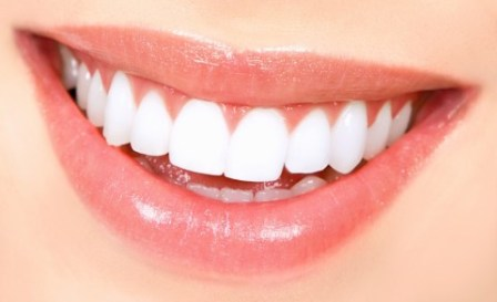 Smile makeover with dental implants