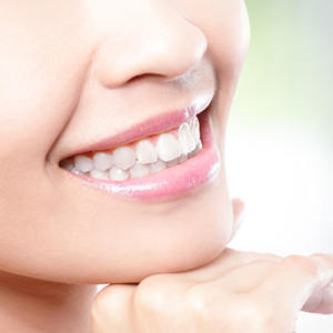 dentalesthetic01
