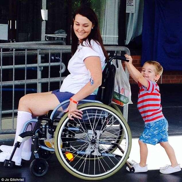 Mulher fica em cadeiras de rodas ao sofrer infecção depois de usar maquiagem de amiga