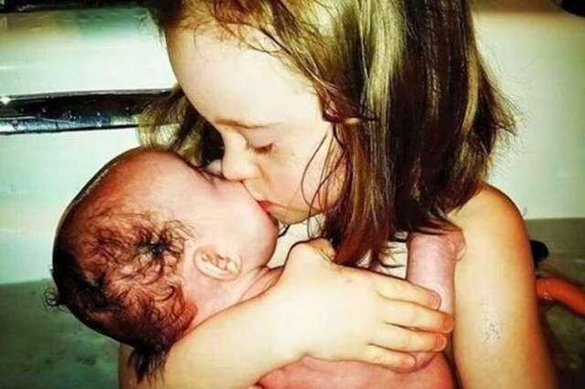 Imagem perfeita mostra amor de menina com Síndrome de Down beijando irmã