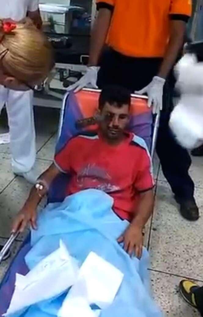 Vídeo chocante mostra momento em que médicos puxam faca de olho de paciente