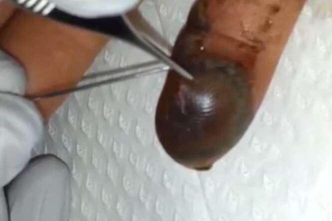 Vídeo chocante mostra o que acontece com o corpo após ser picado por uma cobra venenosa