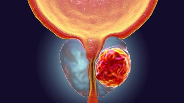 La detección tardía del cáncer de próstata puede costar más de 700 mil pesos