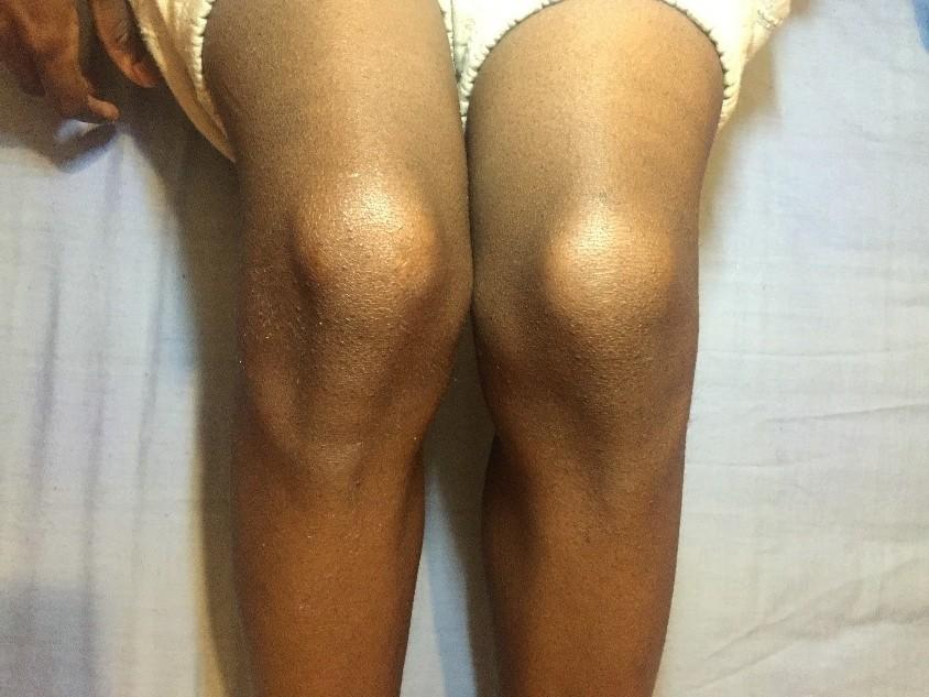 day 1 knee
