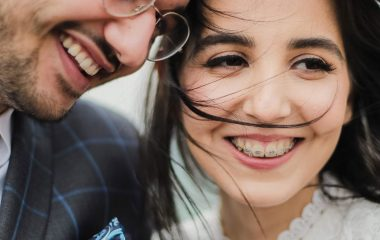 6 Months Braces in Albuquerque from Gallegos Family Dentistry