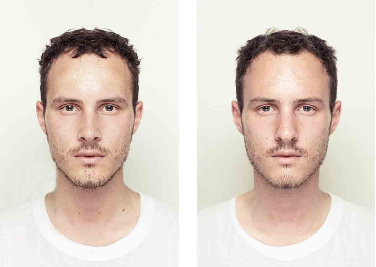 About Facial Symmetry With Alex John Beck Fields Of