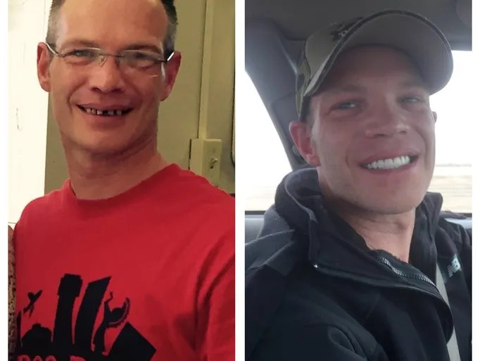 After years of painful dental problems, Brian Maixner