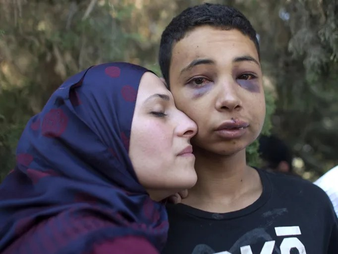 Tariq Abu Khder (C), a Palestinian-US teenager who was allegedly beaten during police custody, is hugged by his mother (L) following a hearing at Jerusalem Magistrates Court on July 6, 2014.