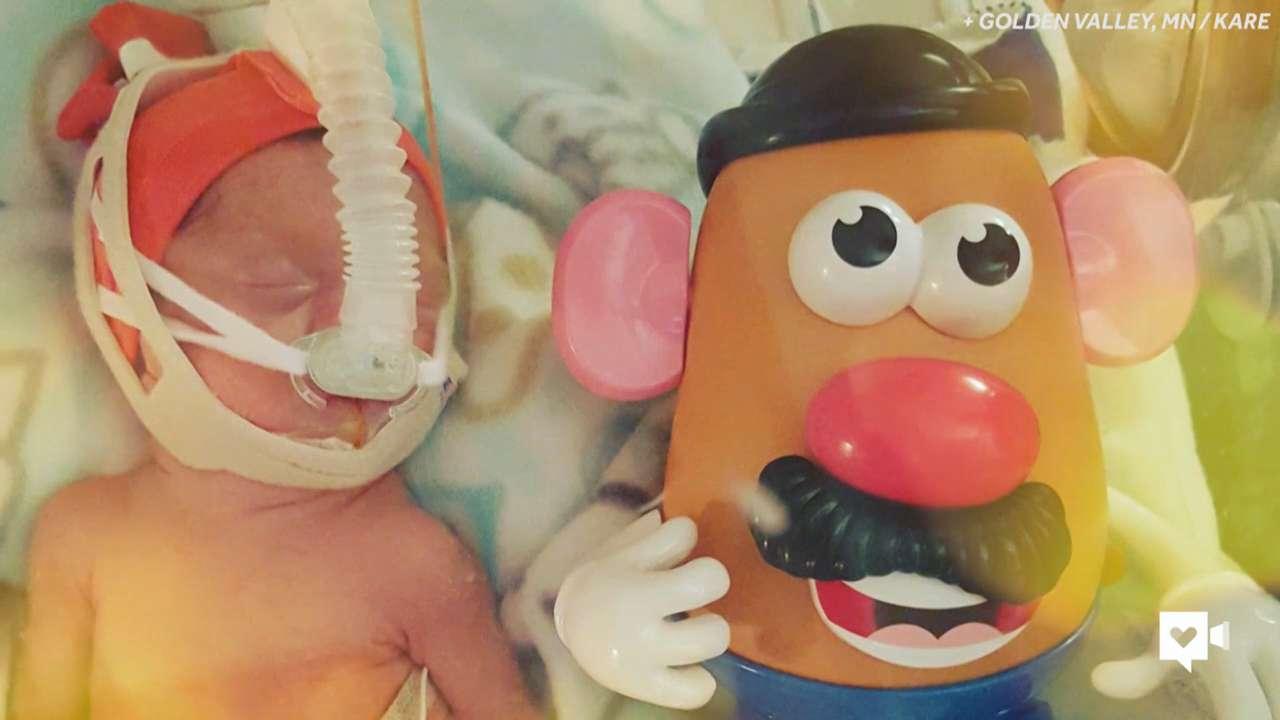 Potato Head Sign Of Hope Smallest Babies