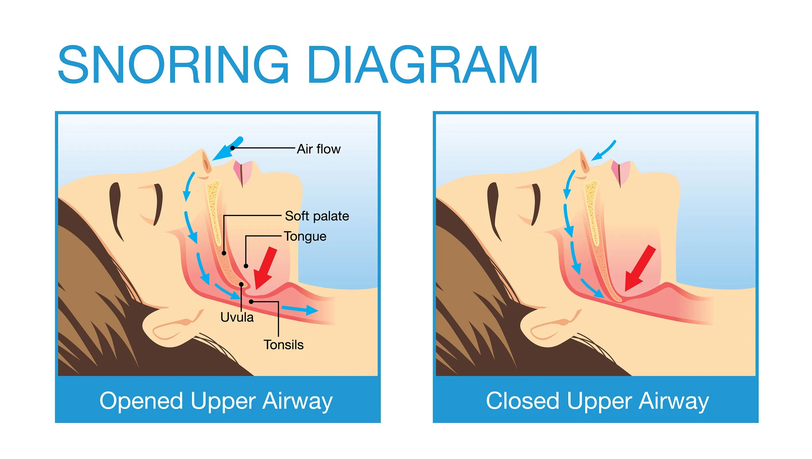 hight resolution of uvula diagram