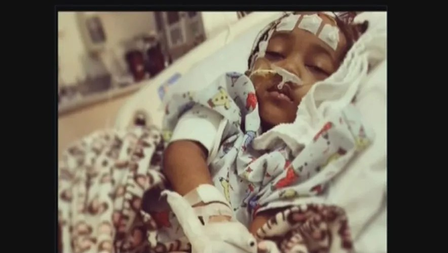 4-year-old suffers brain damage after dentist visit