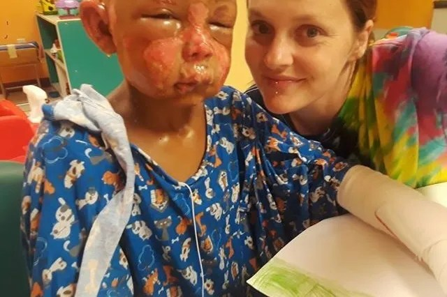 7-year-old Missouri boy doused in nail polish remover, set on fire by another child