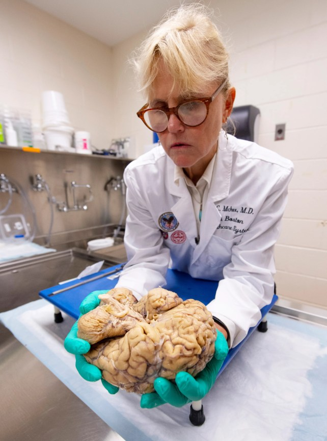 Researchers close in on CTE diagnosis in living, one brain at a time