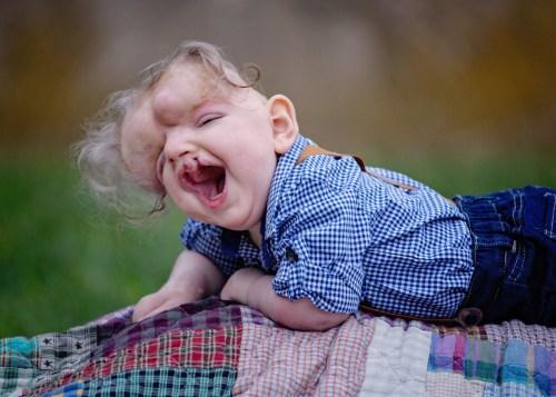 Michelle Renfro, die Fotografin von On Angels Wings, die die Geschichte von Owen Masterson seit seiner Geburt verfolgt hat, hat dieses Foto vor kurzem zum Gedenken an seinen einjährigen Geburtstag aufgenommen.