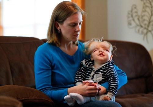Jessica Masterson hält ihren einjährigen Sohn Owen am Donnerstag, dem 11. Oktober 2018, bei sich zu Hause. Owen wurde geboren und vermisste den oberen Teil seines Schädels und es war nicht zu erwarten, dass er die Geburt überleben würde.