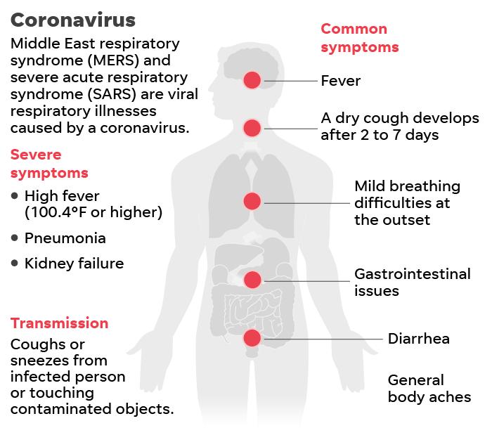 Dane County coronavirus case is first in Wisconsin, 12th in U.S.