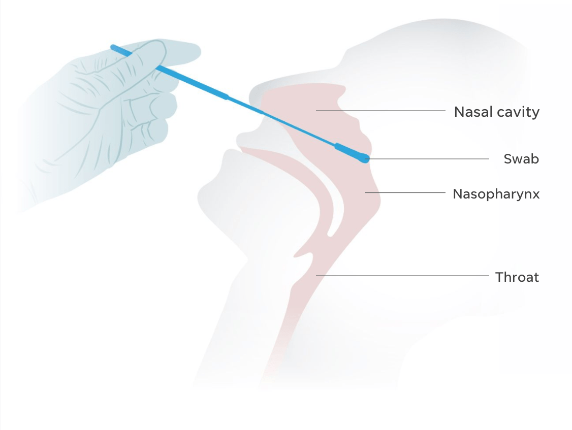 Covid 19 Nasal Swab Test Diagram