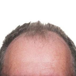 male pattern baldness and testosterone