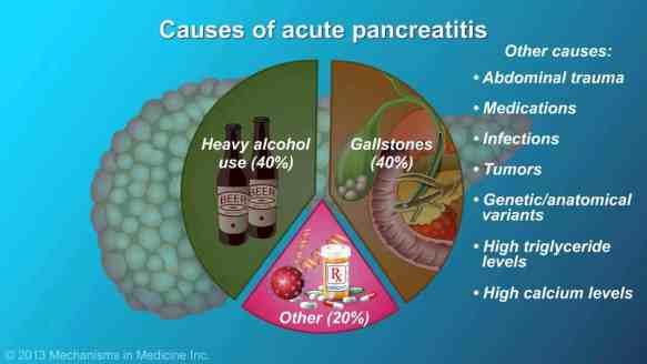 causes-of-pancreatitis