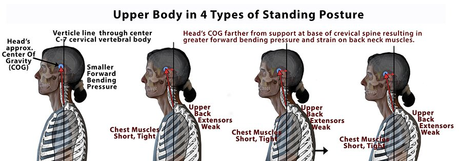 Proper alignment improves neck arthritis symptoms