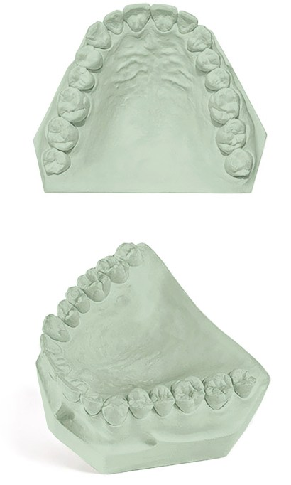 Pemaco Royal Rock Dental Gypsum