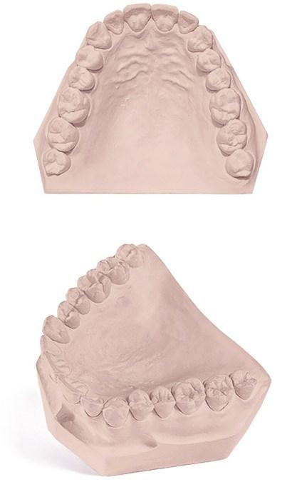 Pemaco REGAL DIE Dental Gypsum