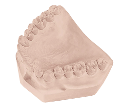 Regal Die Dental Gypsum