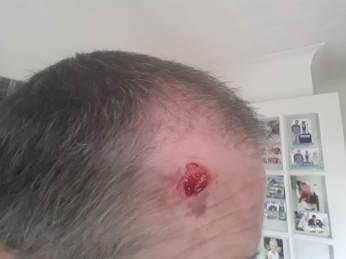 Cut on a head