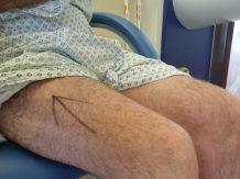 Arrow on leg